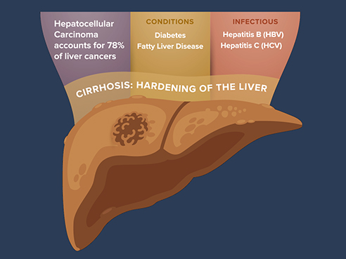 October is Liver Cancer Awareness Month. Visit our new page dedicated to fighting liver cancer in Texas